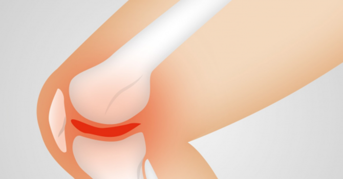 Considering Knee Replacement Surgery? image